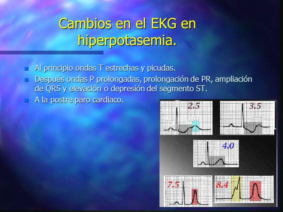 Cambios en el EKG en hiperpotasemia. n Al principio ondas T estrechas y picudas. n Después ondas P prolongadas, prolongación de PR, ampliación de QRS