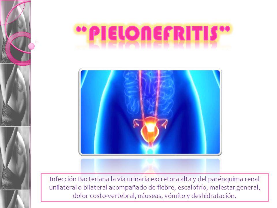 Infección Bacteriana la vía urinaria excretora alta y del parénquima renal unilateral o bilateral acompañado de fiebre, escalofrío, malestar general, dolor costo-vertebral, náuseas, vómito y deshidratación.