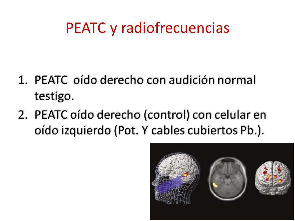PEATC y radiofrecuencias 1.PEATC oído derecho con audición normal testigo. 2.PEATC oído derecho (control) con celular en oído izquierdo (Pot. Y cables