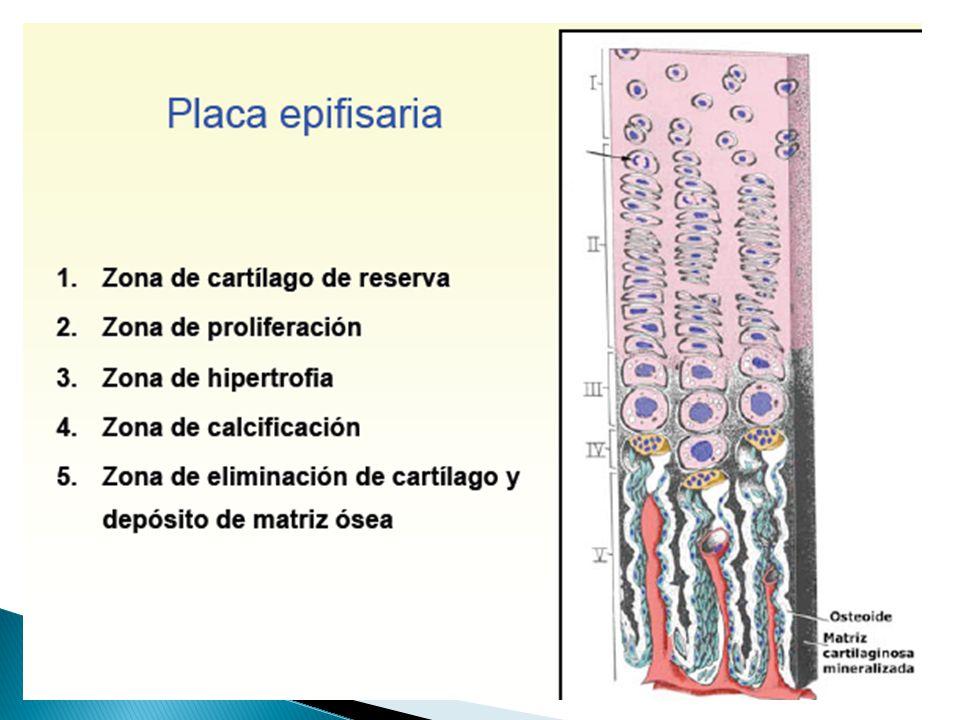 OSIFICACION ENDOCONDRAL Histología Para patólogos.