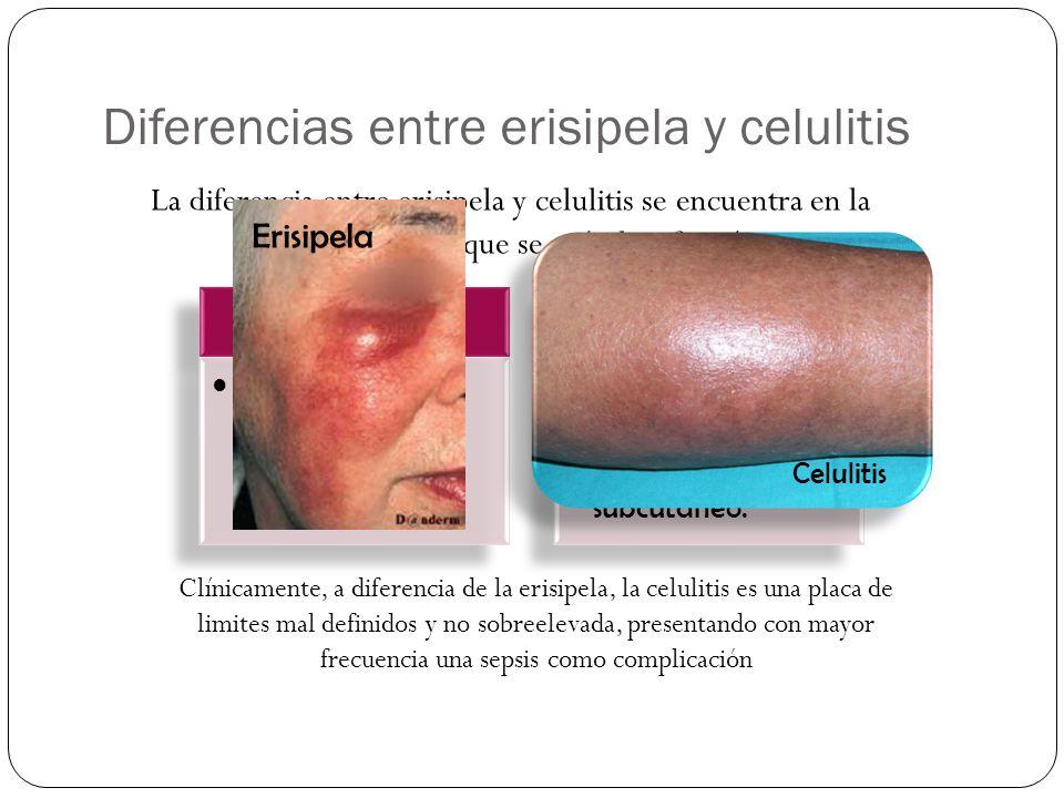 Diferencias entre erisipela y celulitis La diferencia entre erisipela y celulitis se encuentra en la profundidad a la que se sitúa la infección: Clíni