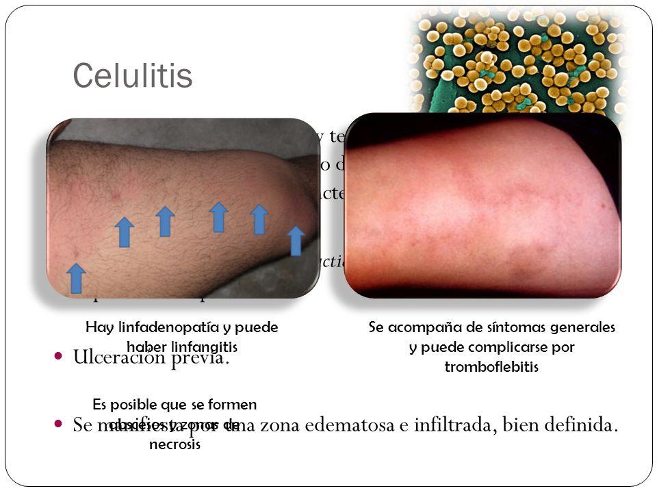 Celulitis Inflamación aguda de la piel y tejido celular subcutáneo originada por un estreptococo del grupo A o Staphylococcus. Aureus y en ocasiones o