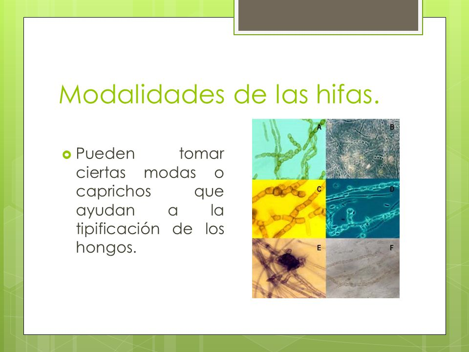 Modalidades de las hifas. Pueden tomar ciertas modas o caprichos que ayudan a la tipificación de los hongos.