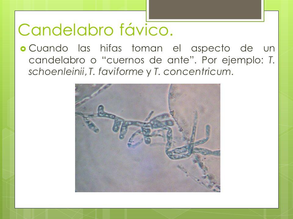 Candelabro fávico. Cuando las hifas toman el aspecto de un candelabro o cuernos de ante. Por ejemplo: T. schoenleinii, T. faviforme y T. concentricum.