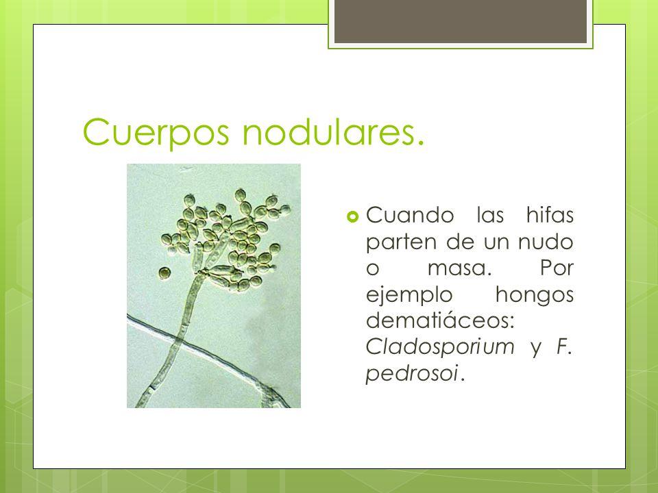 Cuerpos nodulares. Cuando las hifas parten de un nudo o masa. Por ejemplo hongos dematiáceos: Cladosporium y F. pedrosoi.
