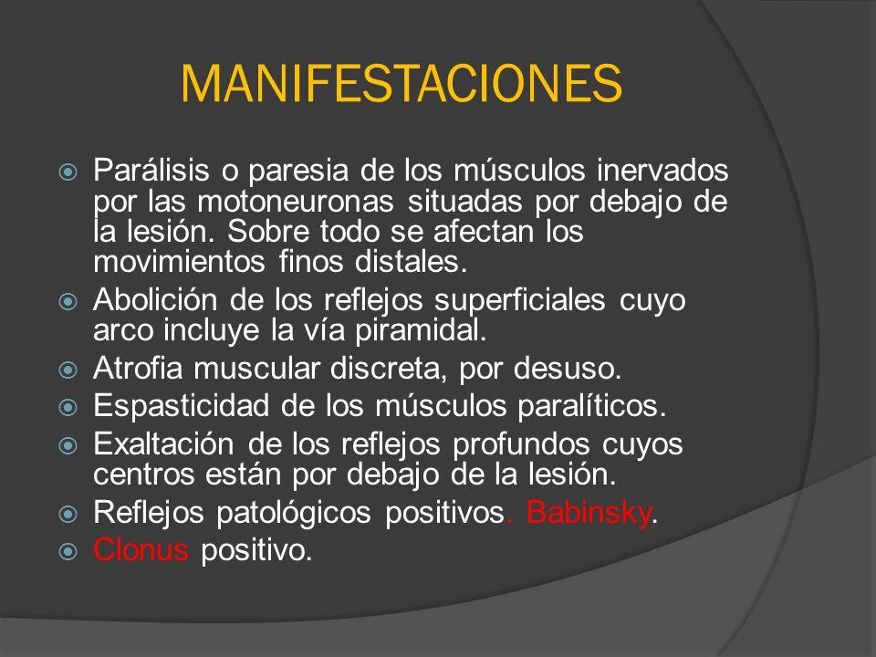 MANIFESTACIONES Parálisis o paresia de los músculos inervados por las motoneuronas situadas por debajo de la lesión. Sobre todo se afectan los movimie