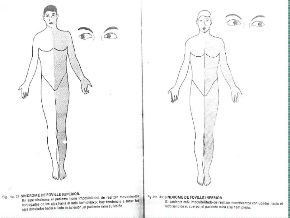 LESION DE LA NEURONA MOTRIZ PERIFERICA Funciones; 1.
