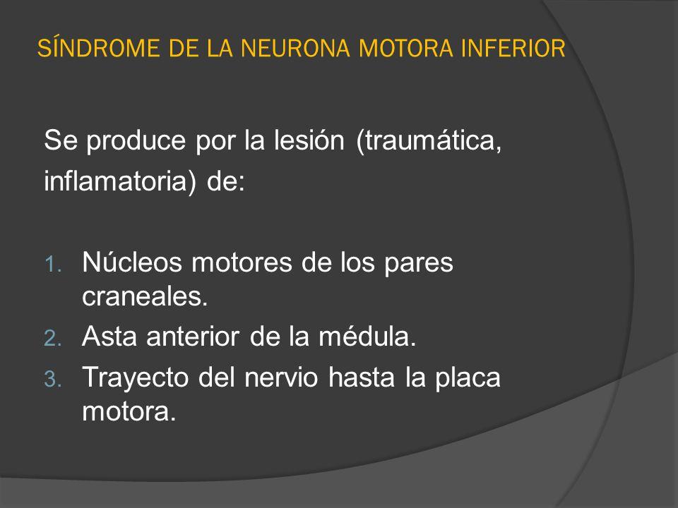 SÍNDROME DE LA NEURONA MOTORA INFERIOR Se produce por la lesión (traumática, inflamatoria) de: 1. Núcleos motores de los pares craneales. 2. Asta ante