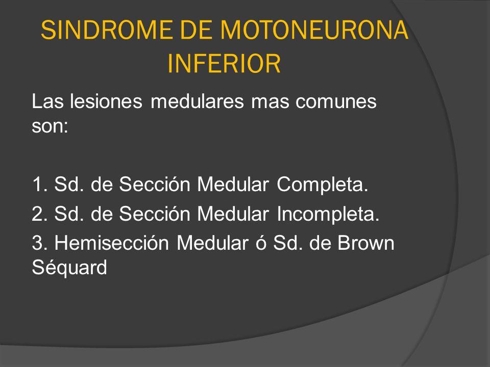 SINDROME DE MOTONEURONA INFERIOR Las lesiones medulares mas comunes son: 1. Sd. de Sección Medular Completa. 2. Sd. de Sección Medular Incompleta. 3.