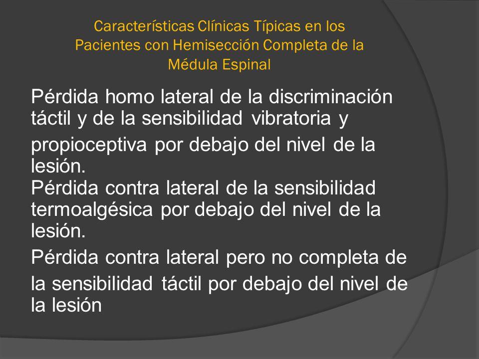 Características Clínicas Típicas en los Pacientes con Hemisección Completa de la Médula Espinal Pérdida homo lateral de la discriminación táctil y de