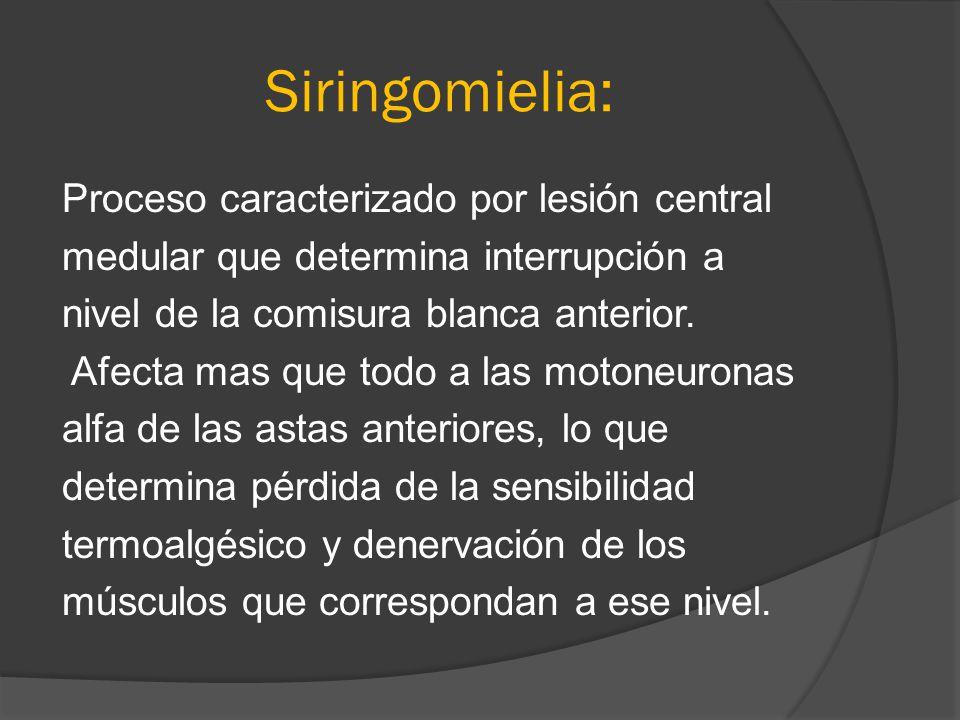Siringomielia: Proceso caracterizado por lesión central medular que determina interrupción a nivel de la comisura blanca anterior. Afecta mas que todo