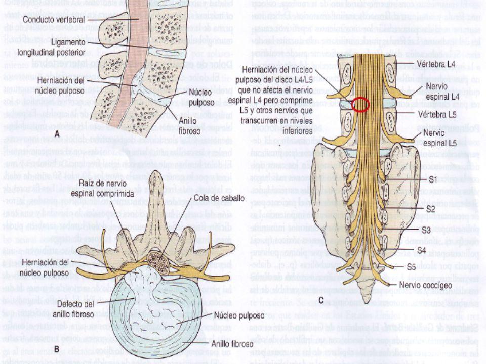 MANIFESTACIONES Atrofia rápida del músculo, al desaparecer el estímulo trófico del nervio sobre el músculo.