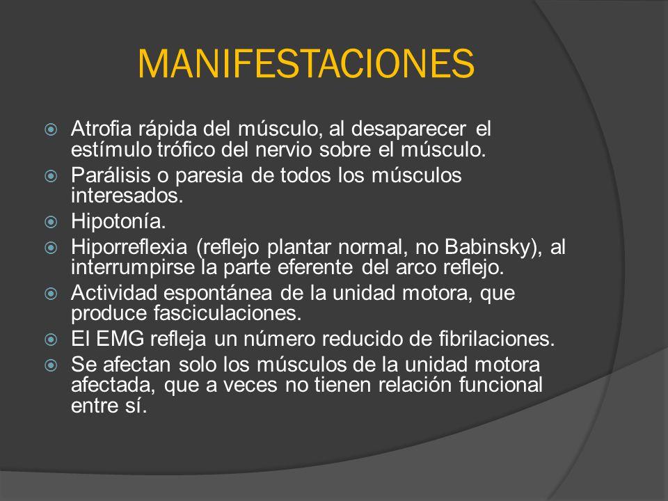 MANIFESTACIONES Atrofia rápida del músculo, al desaparecer el estímulo trófico del nervio sobre el músculo. Parálisis o paresia de todos los músculos