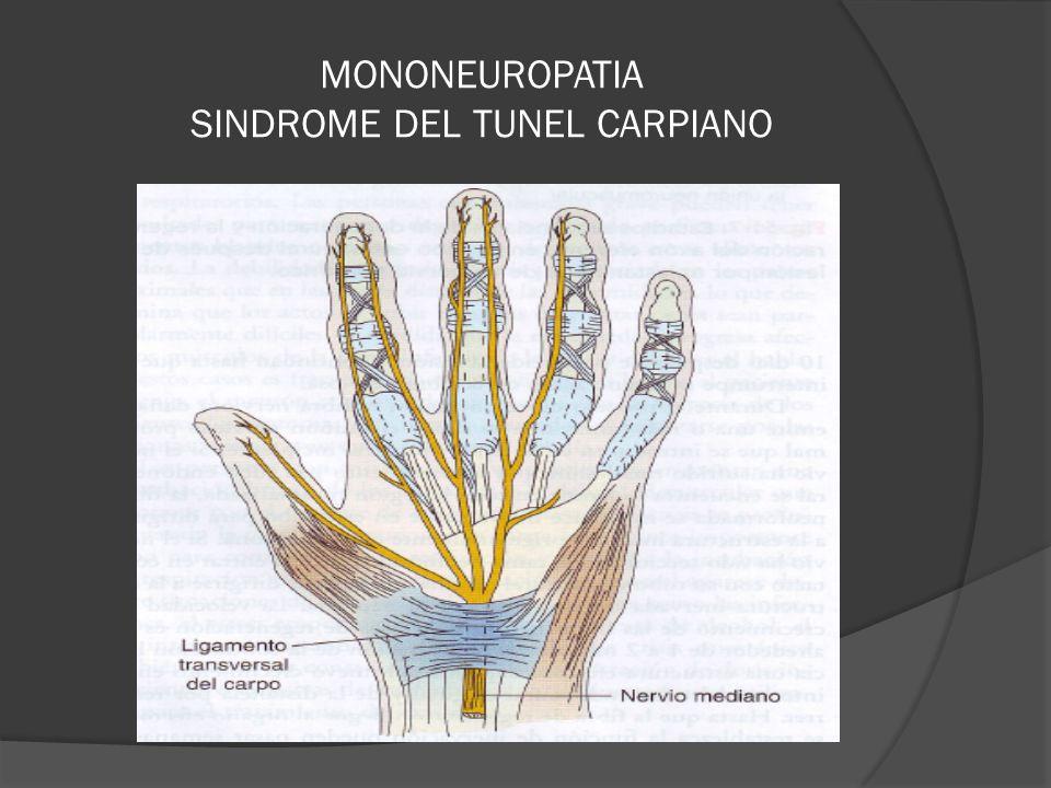 MONONEUROPATIA SINDROME DEL TUNEL CARPIANO