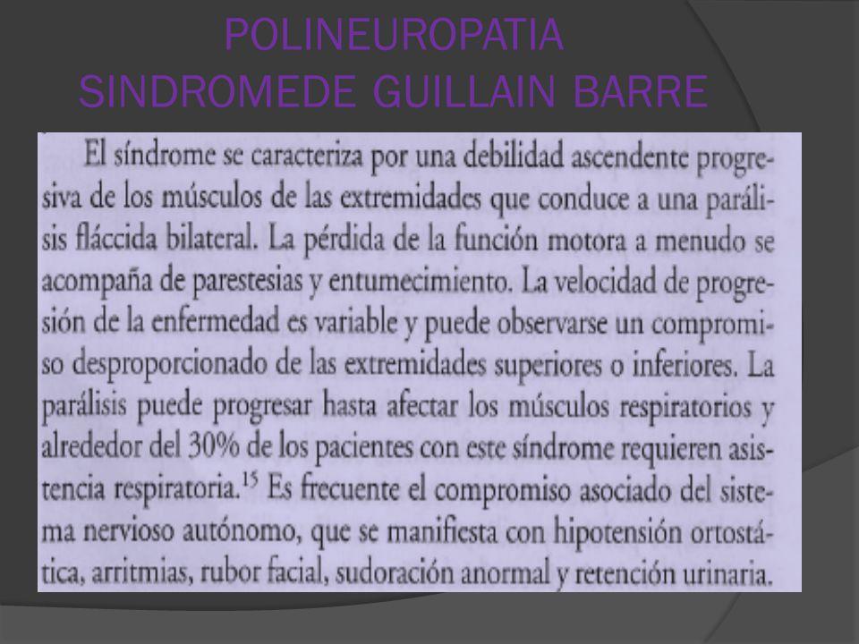 POLINEUROPATIA SINDROMEDE GUILLAIN BARRE