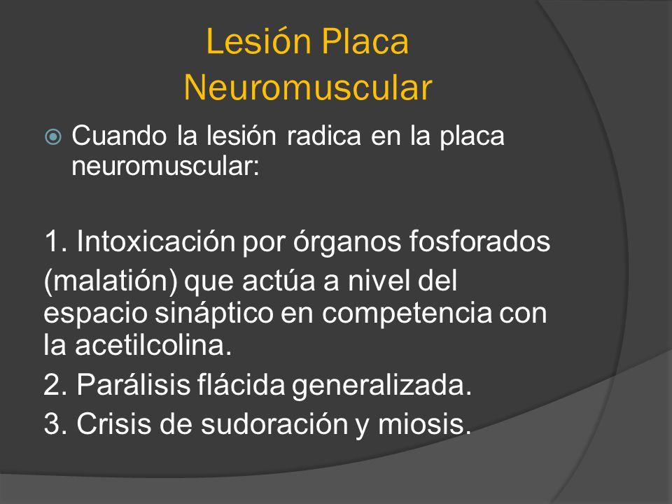 Lesión Placa Neuromuscular Cuando la lesión radica en la placa neuromuscular: 1. Intoxicación por órganos fosforados (malatión) que actúa a nivel del
