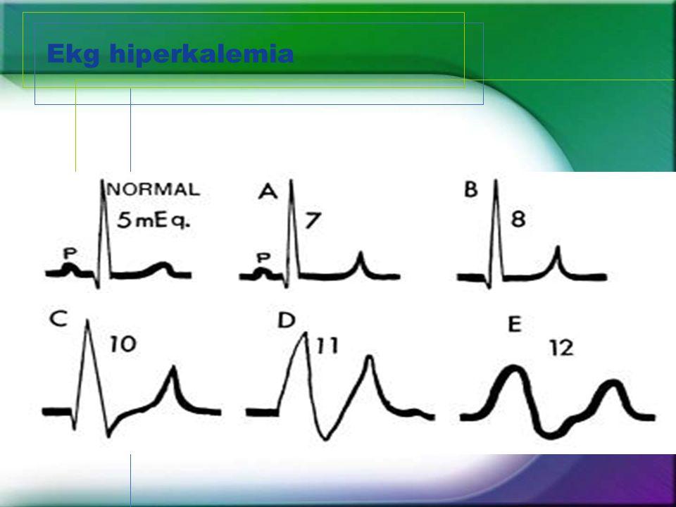 Ekg hiperkalemia