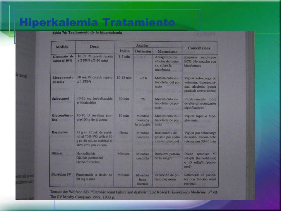 Hiperkalemia Tratamiento