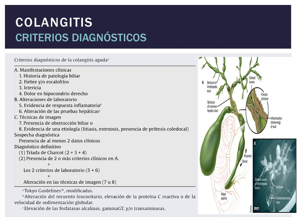 COLANGITIS CRITERIOS DIAGNÓSTICOS