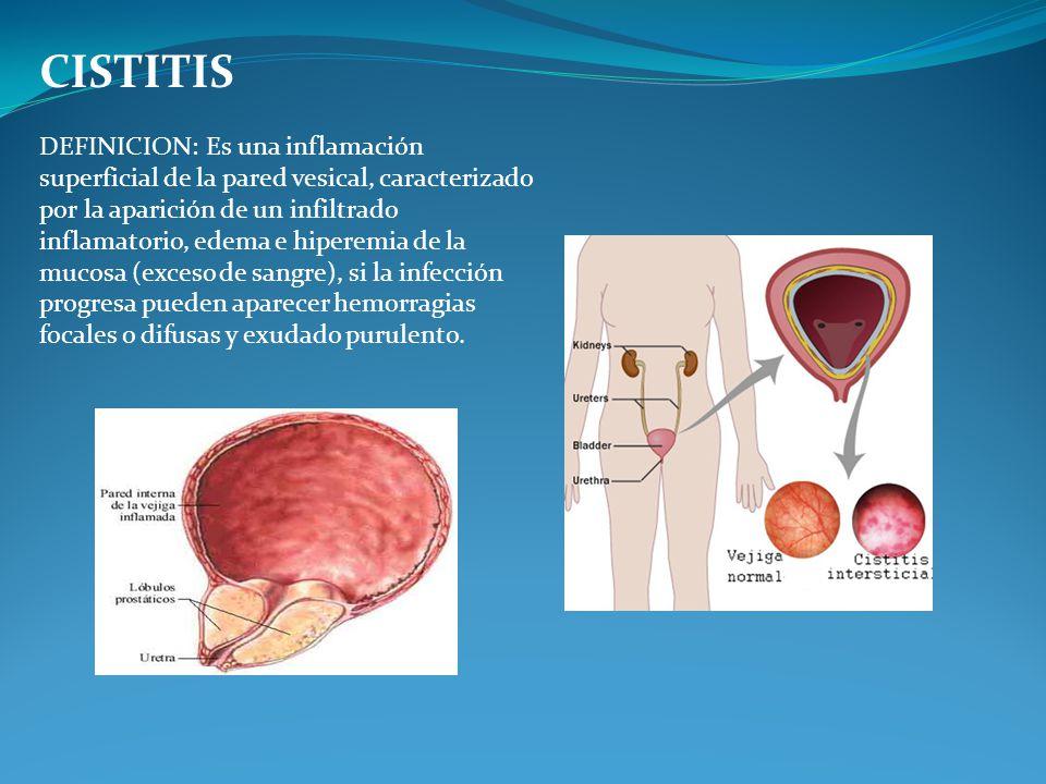 CISTITIS DEFINICION: Es una inflamación superficial de la pared vesical, caracterizado por la aparición de un infiltrado inflamatorio, edema e hiperem