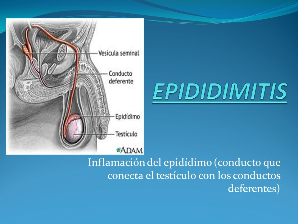 Inflamación del epidídimo (conducto que conecta el testículo con los conductos deferentes)