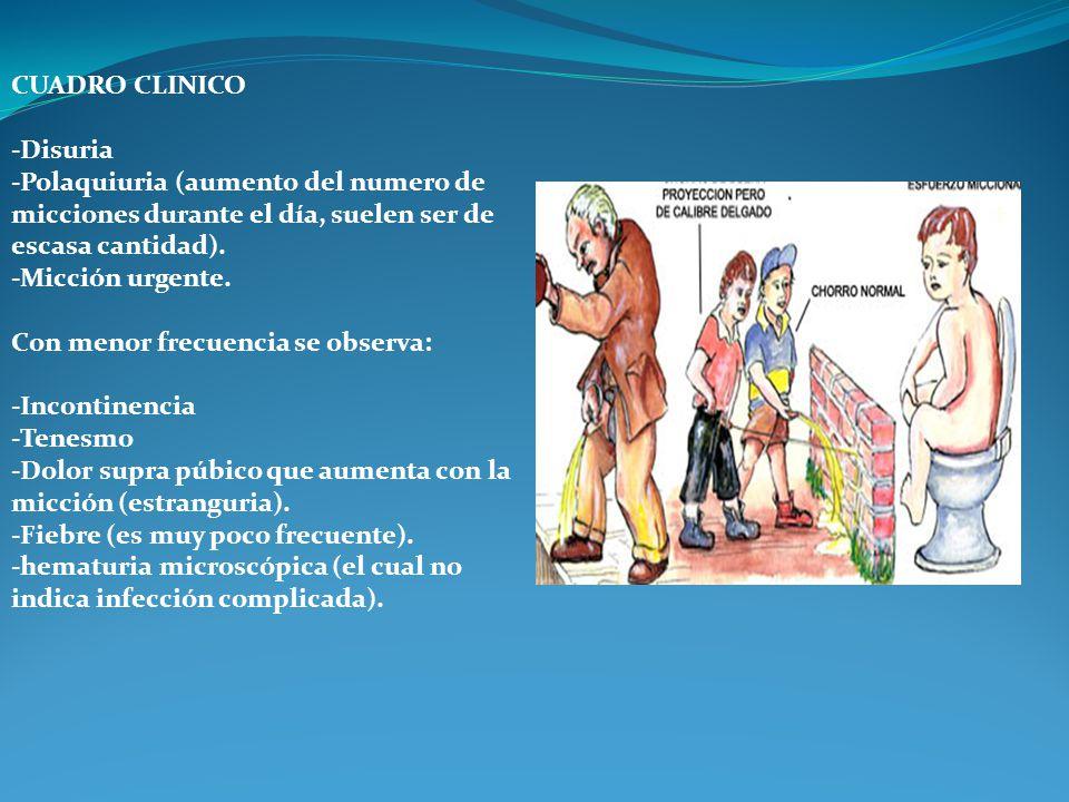 CUADRO CLINICO -Disuria -Polaquiuria (aumento del numero de micciones durante el día, suelen ser de escasa cantidad). -Micción urgente. Con menor frec