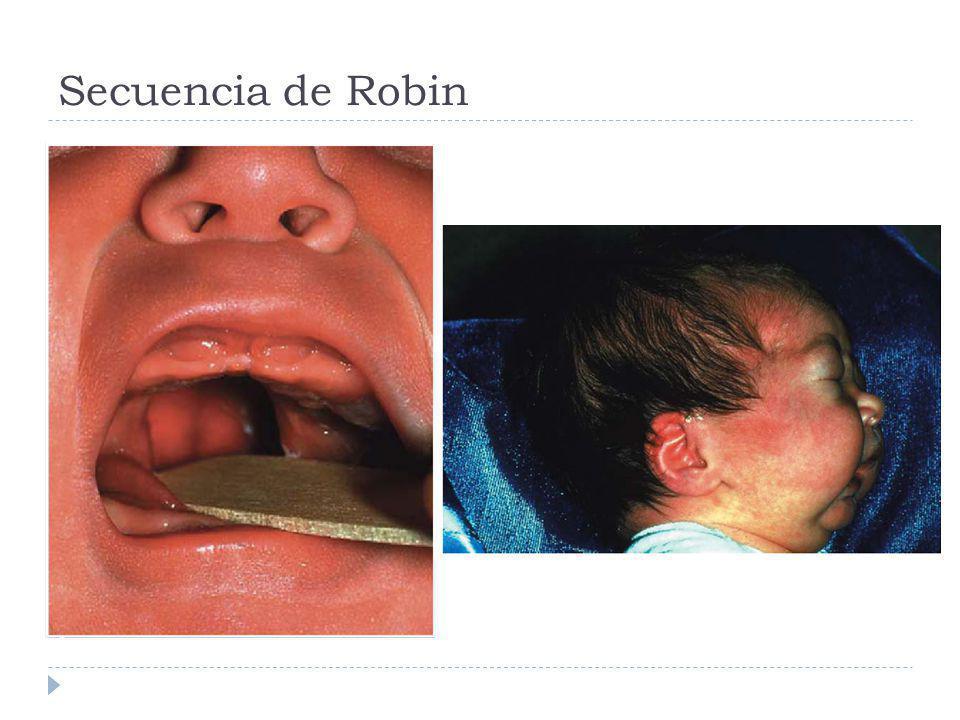 Secuencia de Robin