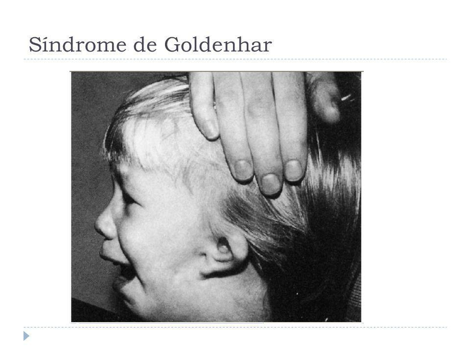 Síndrome de Goldenhar