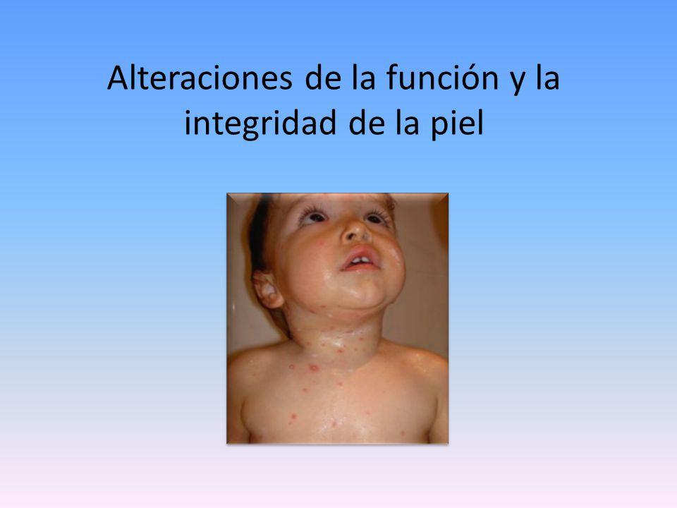 Lesiones dermatológicas elementales Son los signos con los que se presentan todas las enfermedades de la piel, como si fueran las letras del alfabeto dermatológico, sin conocerlas no podemos leer en la piel