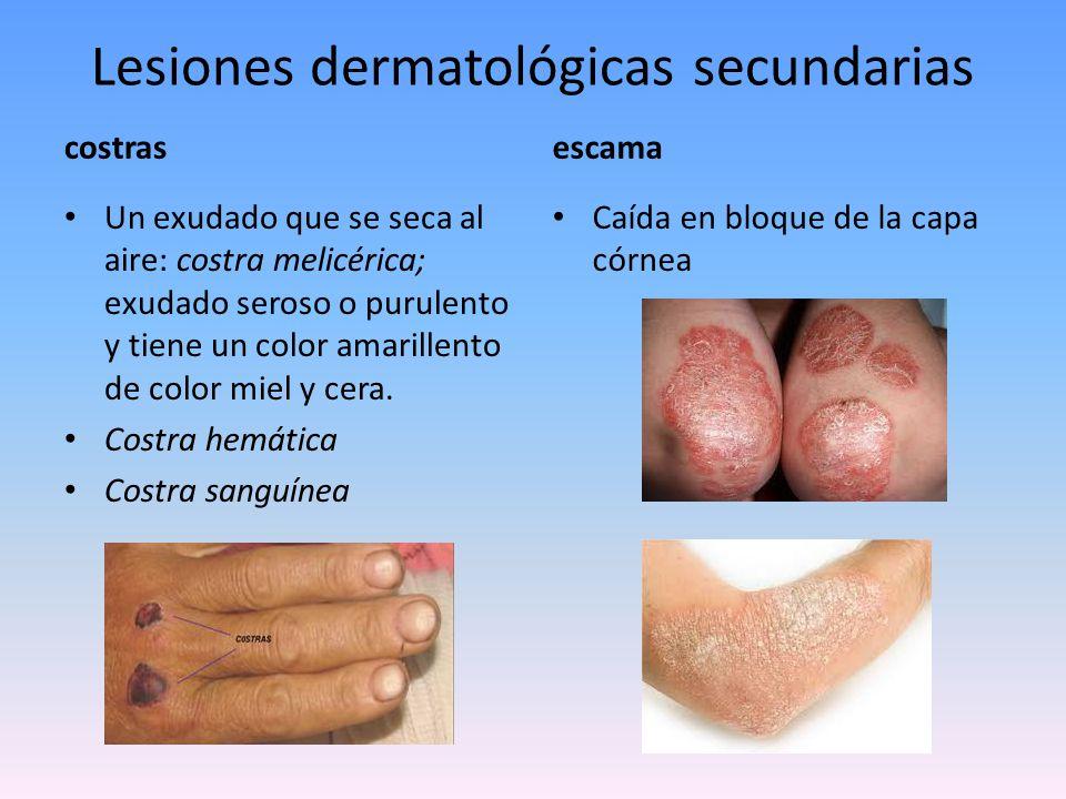 Lesiones dermatológicas secundarias escara Caída en bloque de una parte muerta, necrosada de la piel que dejará una ulceración.