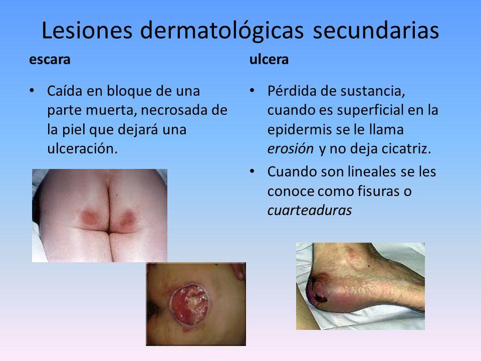Lesiones dermatológicas secundarias cicatriz Reparación fibrosa de una solución de continuidad.