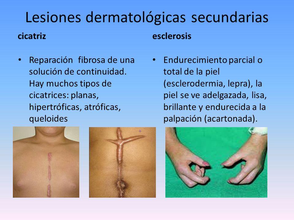 Lesiones dermatológicas elementales secundarias atrofia Adelgazamiento total o parcial de las capas de la piel.