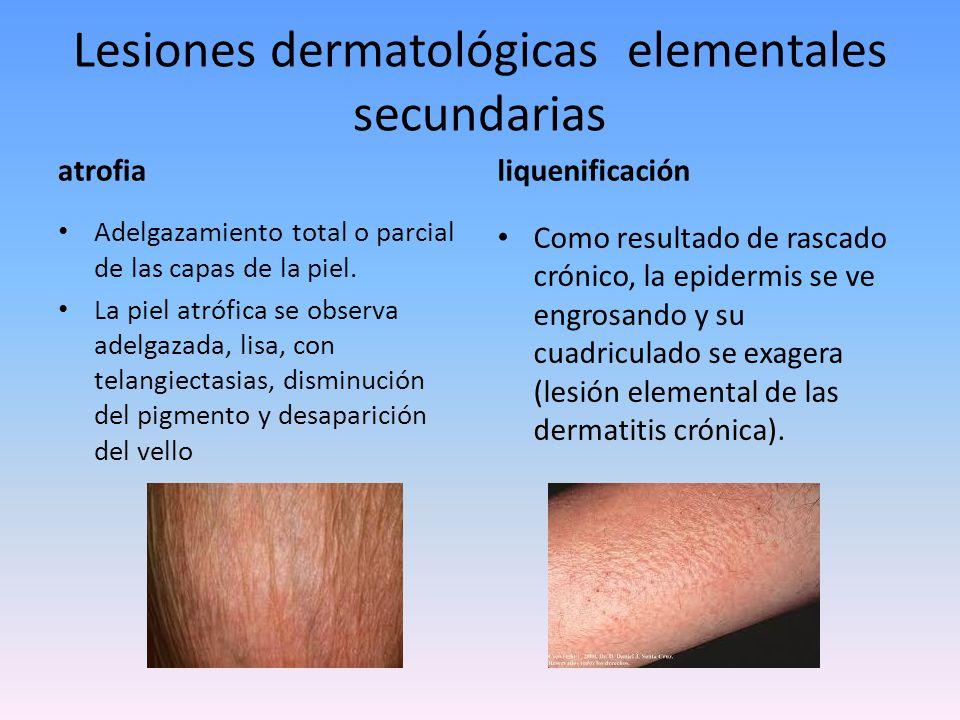 Lesiones dermatológicas secundarias verrugosidad Son levantamientos de la piel de aspecto anfractuoso, mamelonado.