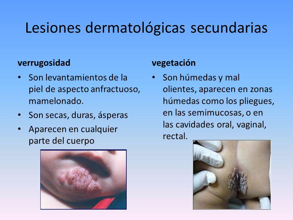Síndromes reacciónales de la piel URTICARIA PRÚRIGO DERMATITIS