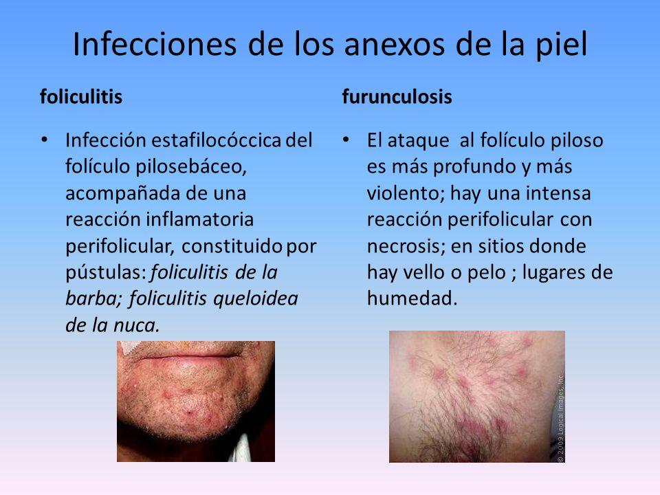 Infecciones de los anexos de la piel Hidrosadenitis Infección por estafilococo de las glándulas sudoríparas apocrinas de axilas, ingles, periné, región perianal, pubis, areola del pezón y ombligo; formado por abscesos dolorosos que forman plastrones inflamatorios.