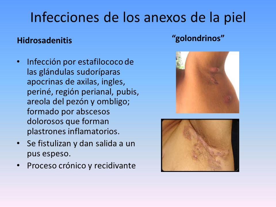 Infecciones de los anexos de la piel erisipela Infección dermoepidérmica producida por estreptococo Llega a la piel directamente (herida, quemadura, tiña de los pies impetiginizada).