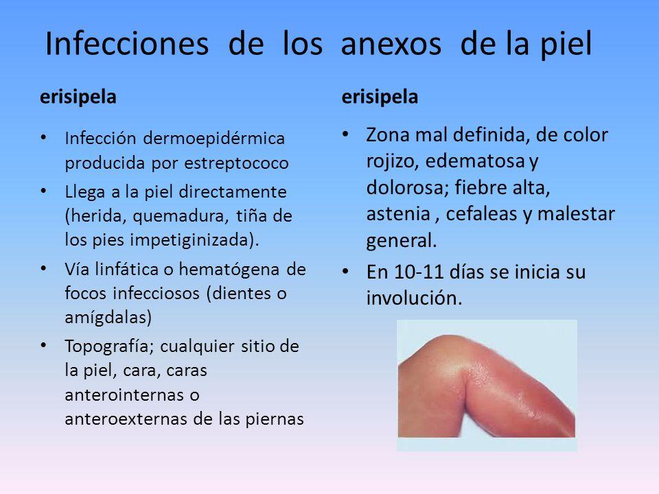 Infecciones de los anexos de la piel ectima Proceso más profundo dermohipodérmico, producido por estreptococo.
