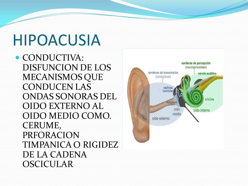 HIPOACUSIA CONDUCTIVA: DISFUNCION DE LOS MECANISMOS QUE CONDUCEN LAS ONDAS SONORAS DEL OIDO EXTERNO AL OIDO MEDIO COMO. CERUME, PRFORACION TIMPANICA O