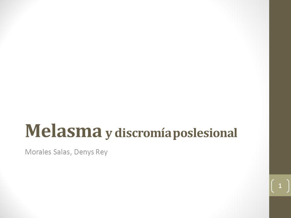 Melasma y discromía poslesional Morales Salas, Denys Rey 1