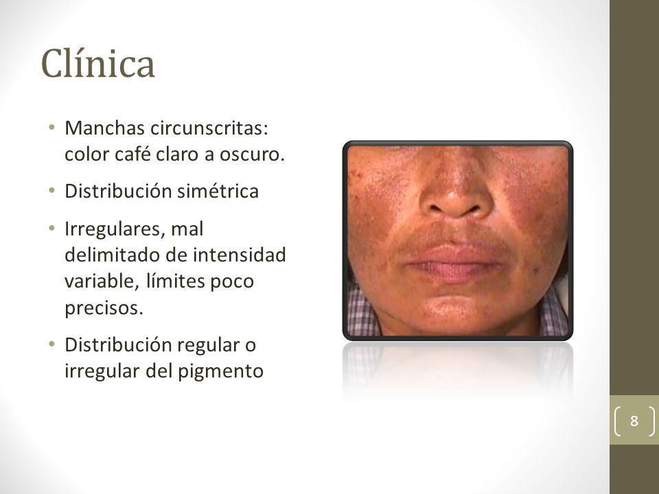 Clínica Manchas circunscritas: color café claro a oscuro. Distribución simétrica Irregulares, mal delimitado de intensidad variable, límites poco prec