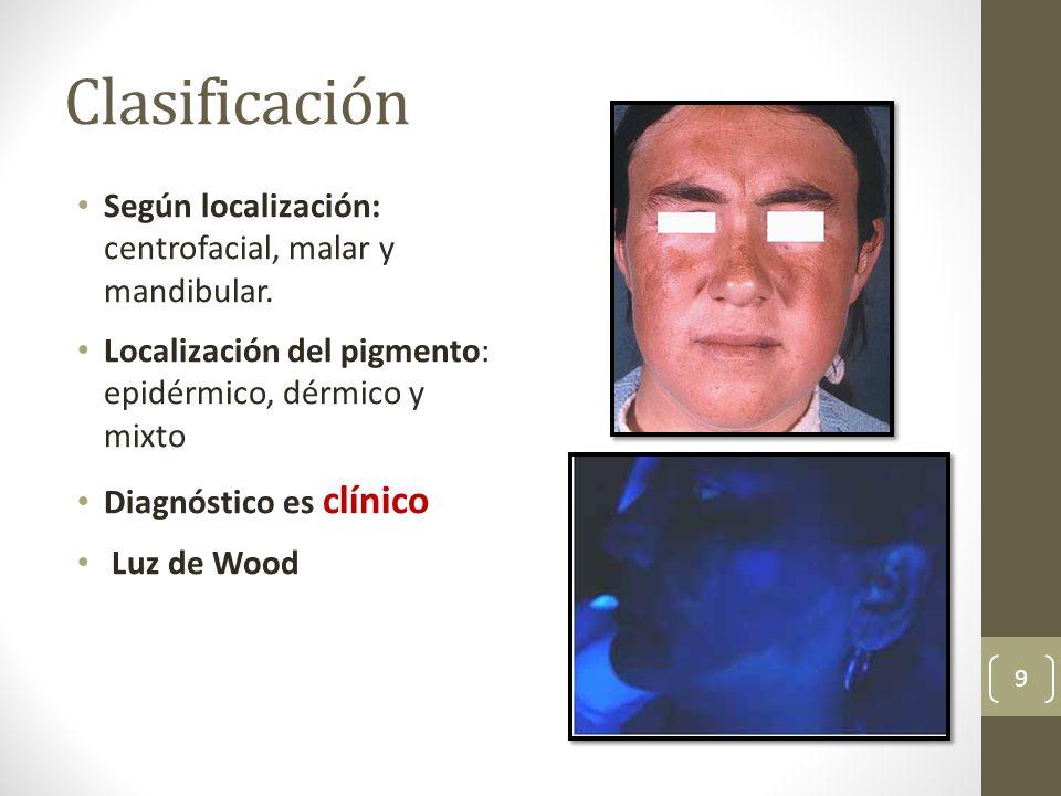 Clasificación Según localización: centrofacial, malar y mandibular. Localización del pigmento: epidérmico, dérmico y mixto Diagnóstico es clínico Luz