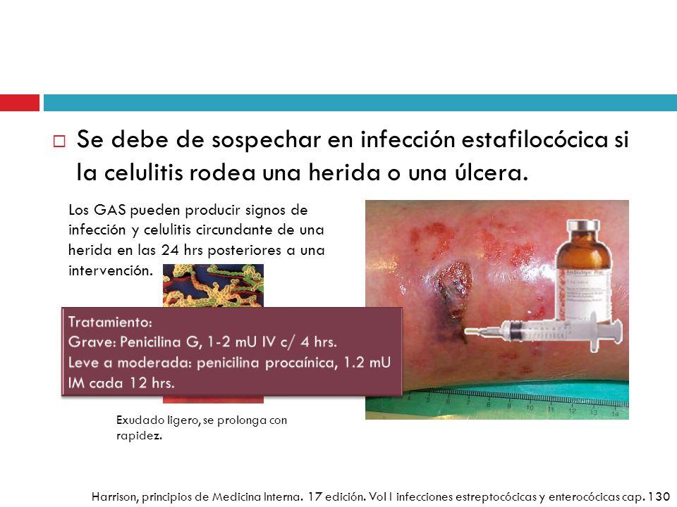 Se debe de sospechar en infección estafilocócica si la celulitis rodea una herida o una úlcera. Los GAS pueden producir signos de infección y celuliti
