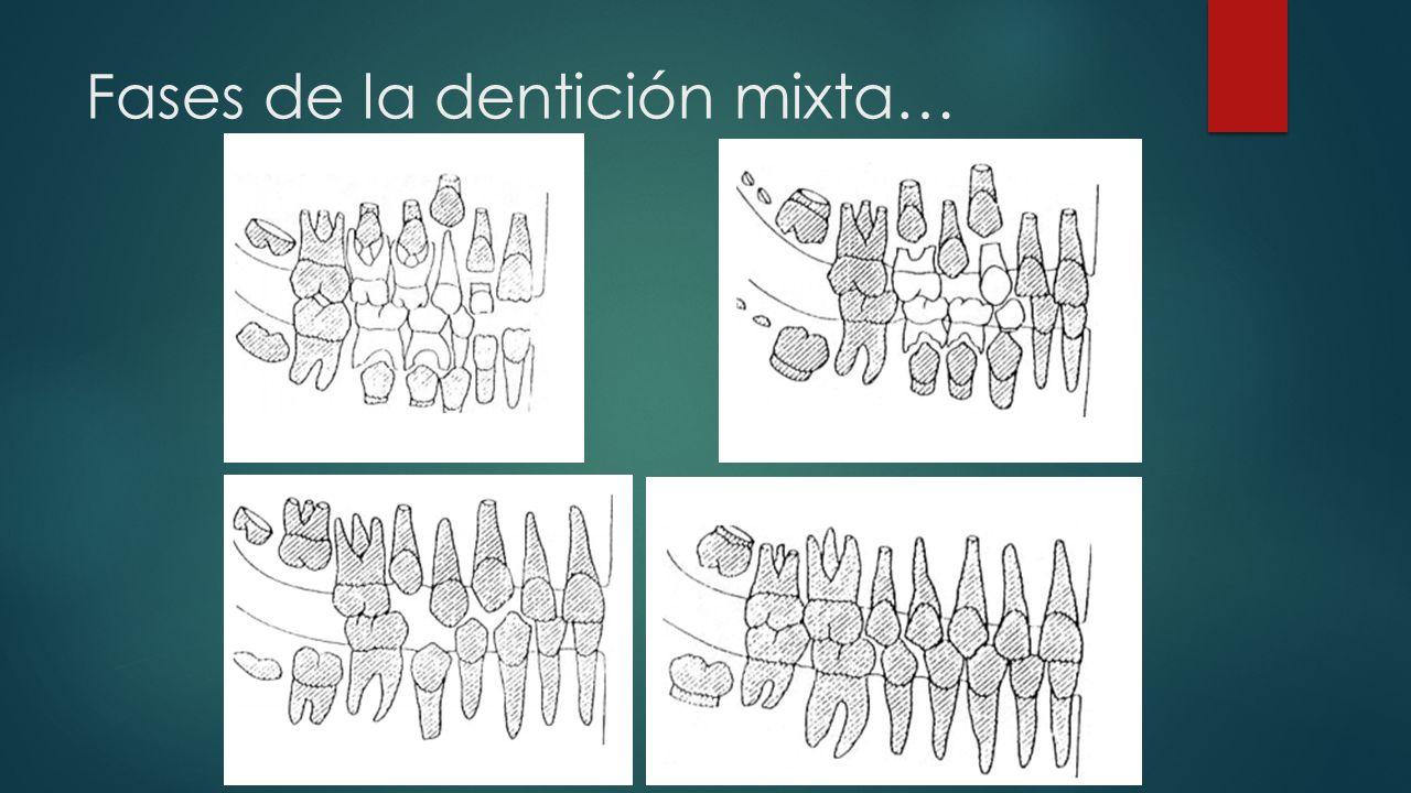 Fases de la dentición mixta…
