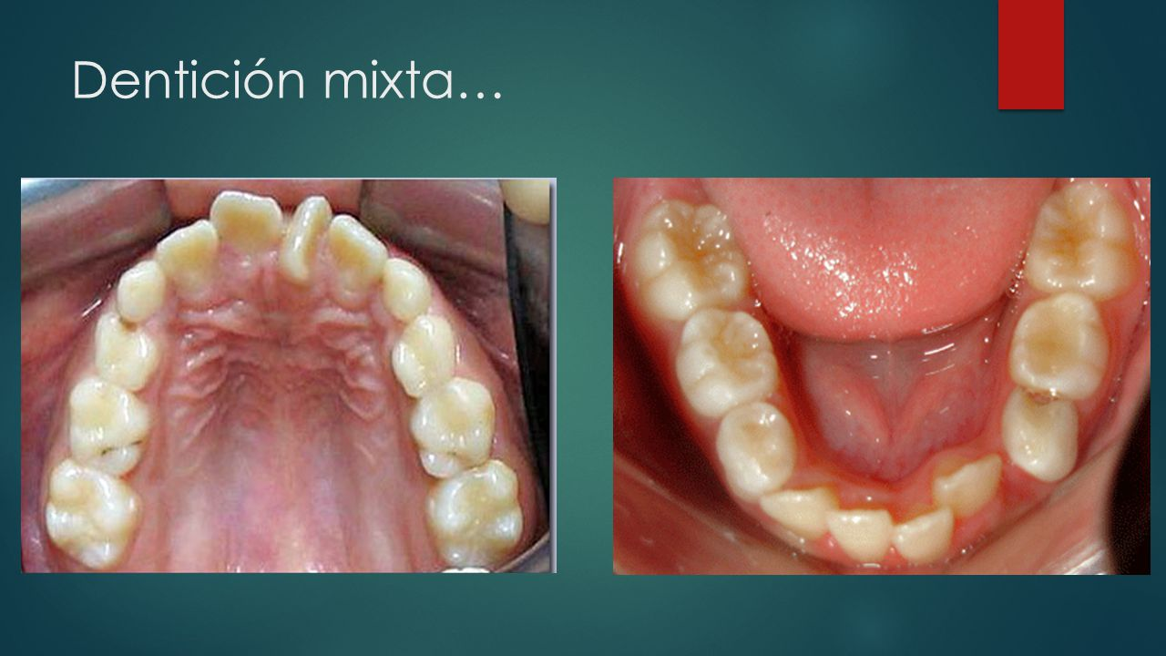 Dentición mixta…