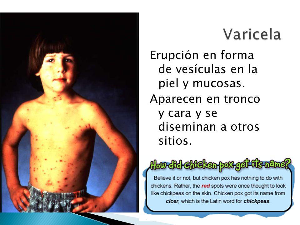 Erupción en forma de vesículas en la piel y mucosas. Aparecen en tronco y cara y se diseminan a otros sitios.