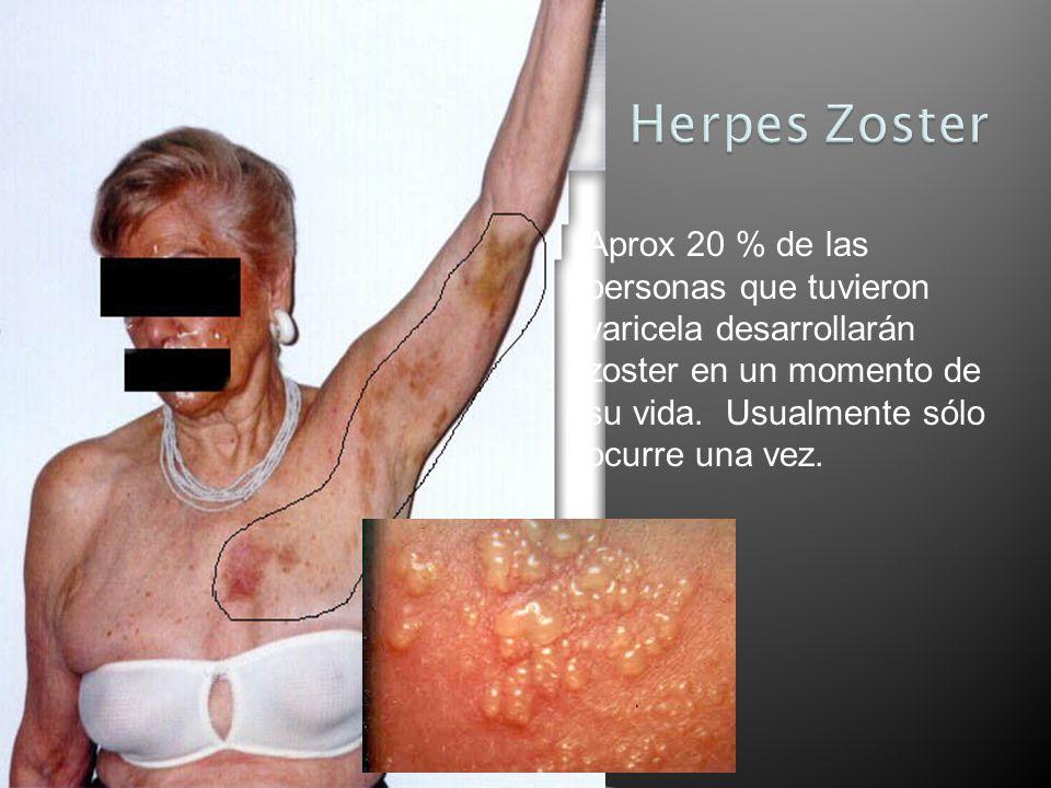 Aprox 20 % de las personas que tuvieron varicela desarrollarán zoster en un momento de su vida. Usualmente sólo ocurre una vez.
