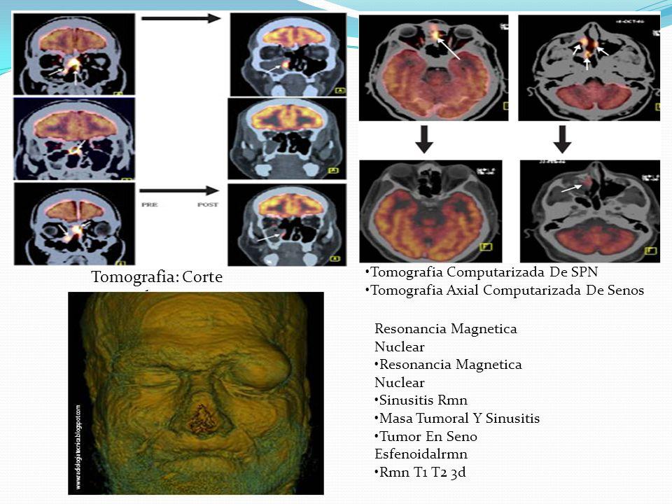 Tomografia: Corte Coronal Tomografia Computarizada De SPN Tomografia Axial Computarizada De Senos Resonancia Magnetica Nuclear Resonancia Magnetica Nu