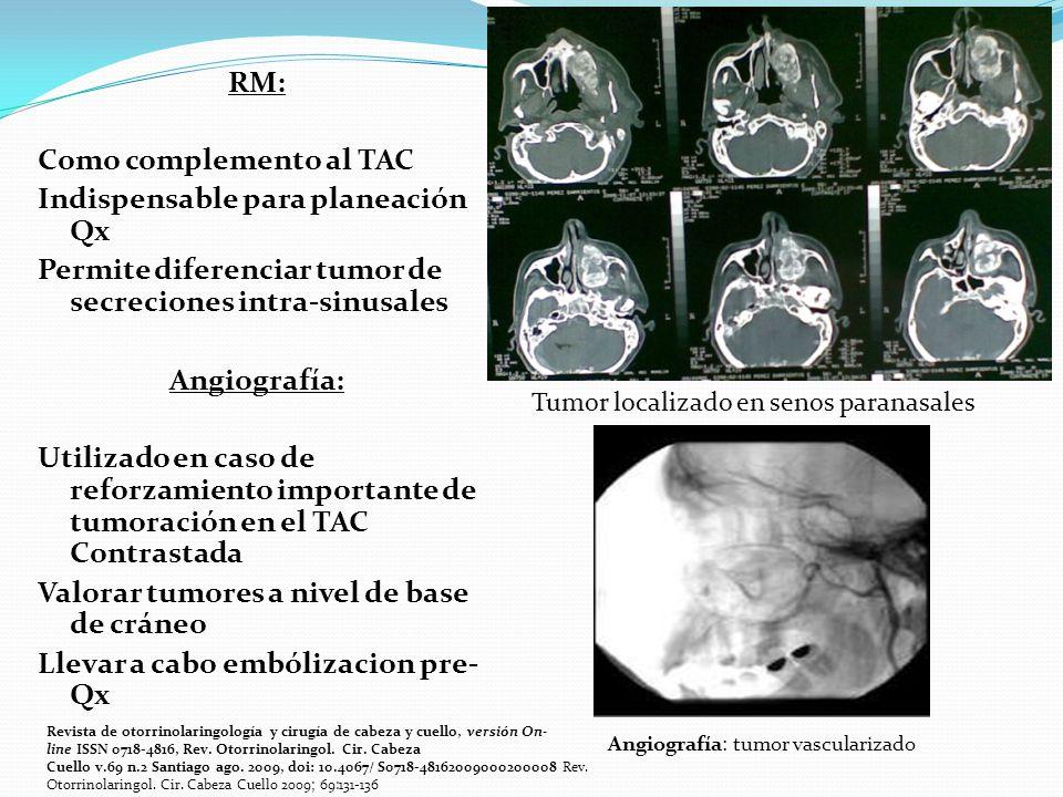 RM: Como complemento al TAC Indispensable para planeación Qx Permite diferenciar tumor de secreciones intra-sinusales Angiografía: Utilizado en caso de reforzamiento importante de tumoración en el TAC Contrastada Valorar tumores a nivel de base de cráneo Llevar a cabo embólizacion pre- Qx Tumor localizado en senos paranasales Angiografía: tumor vascularizado Revista de otorrinolaringología y cirugía de cabeza y cuello, versión On- line ISSN 0718-4816, Rev.