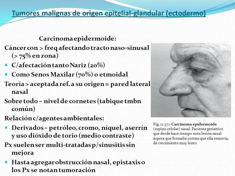 Tumores malignas de origen epitelial-glandular (ectodermo) Carcinoma epidermoide: Cáncer con > freq afectando tracto naso-sinusal (> 75% en zona) C/af