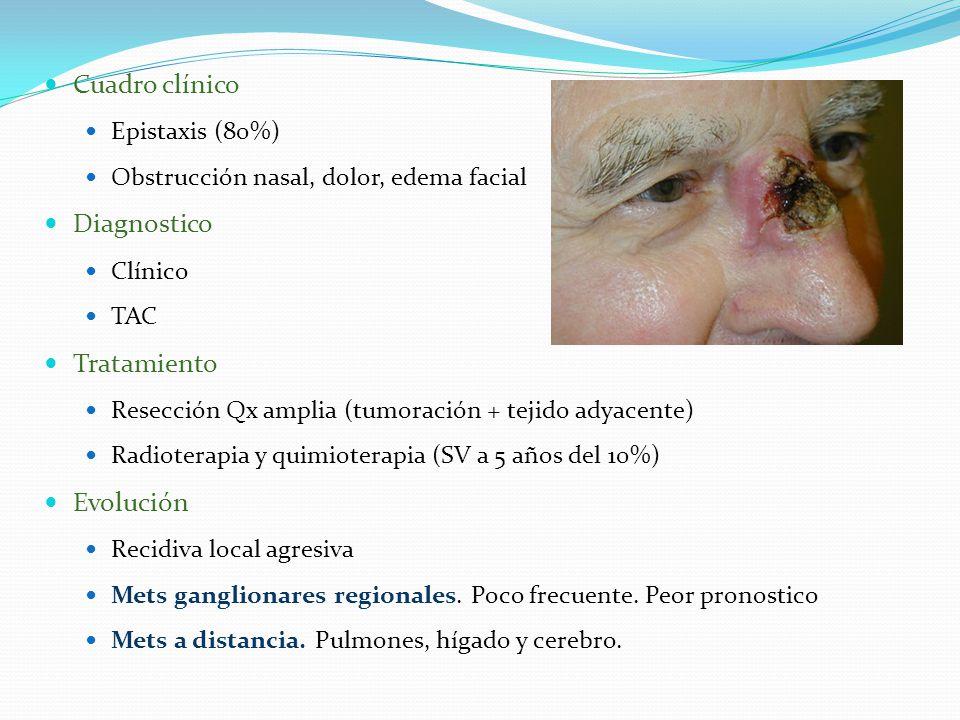 Cuadro clínico Epistaxis (80%) Obstrucción nasal, dolor, edema facial Diagnostico Clínico TAC Tratamiento Resección Qx amplia (tumoración + tejido adyacente) Radioterapia y quimioterapia (SV a 5 años del 10%) Evolución Recidiva local agresiva Mets ganglionares regionales.